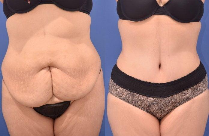 Reducción de abdomen