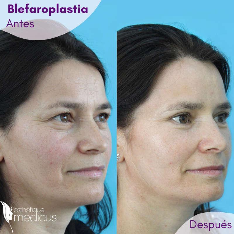 Foto de una mujer que se hizo realizar la Blefaroplastia.