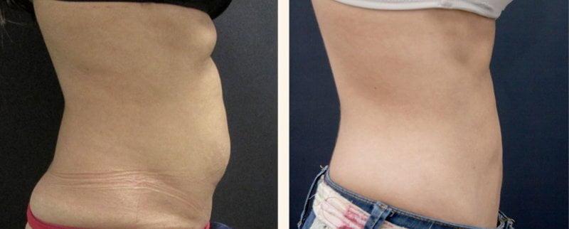 La hidrolipoclasia es un tratamiento utilizado en medicina estética para reducir grasa localizada y medidas.