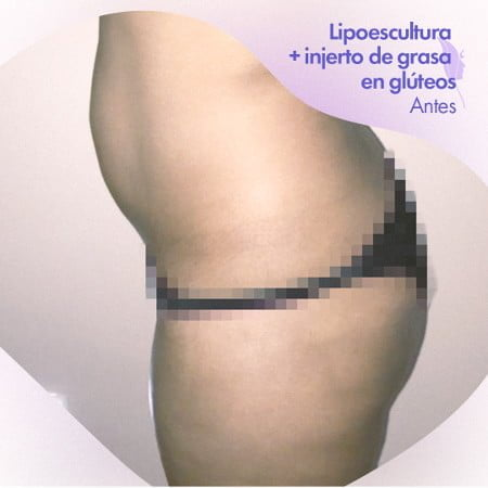 Lipoescultura con aumento de glúteos, antes de la cirugía.