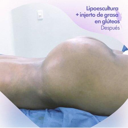 Lipoescultura con aumento de glúteos, después de la cirugía.
