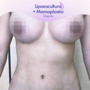 Lipoescultura con Mamoplastia después de la cirugía.