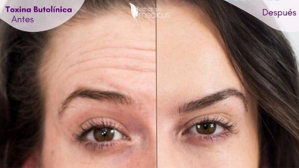 Uso de toxina botulínica para las arrugas de la frente.