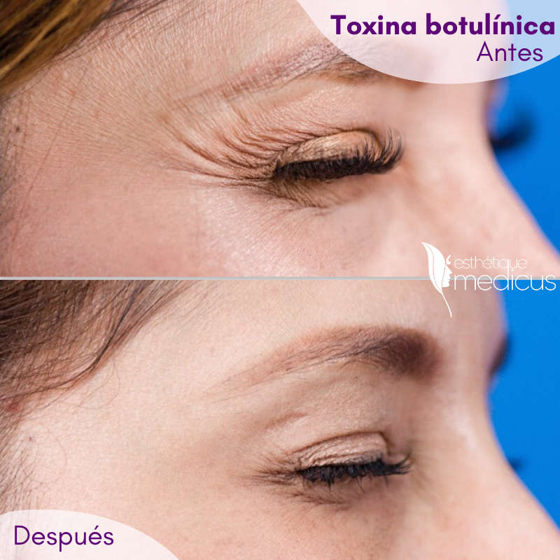 Toxina botulínica, antes y después del tratamiento.