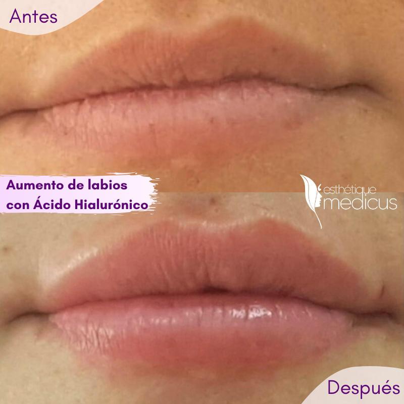 Aumento de labios con acido hialurónico.