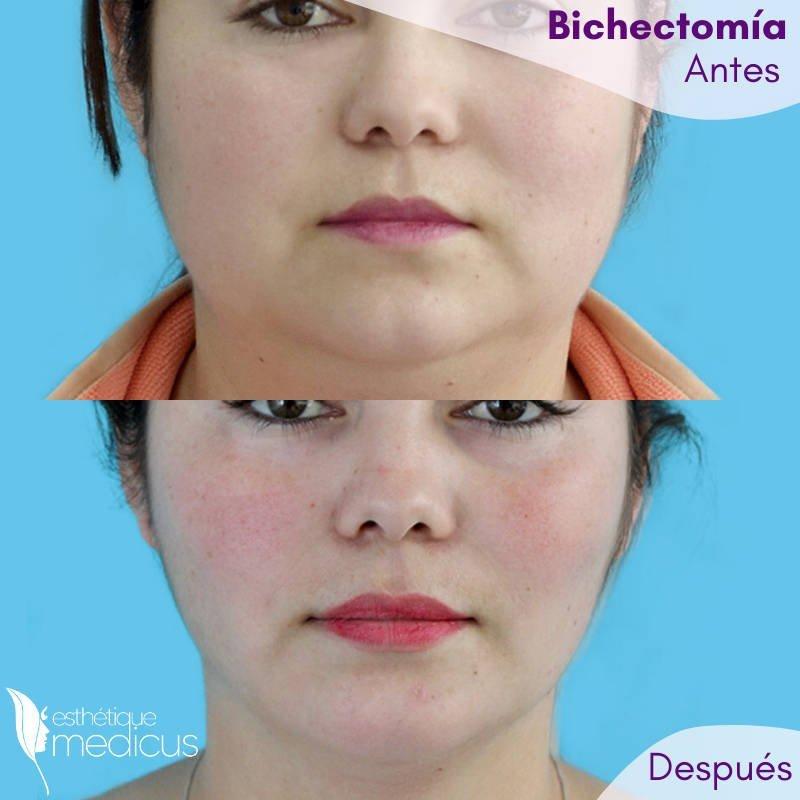 Bichectomía antes y después de la cirugía.